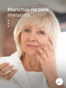 Ácido Kójico 10% - Gel para Tratamento de Manchas Faciais
