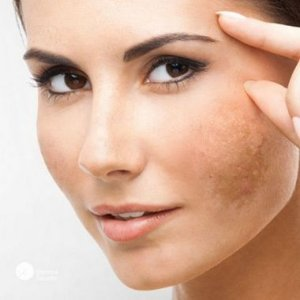 Ácido Kójico 10% + Glicólico 5%  - Manchas e Fechar Poros - 50g