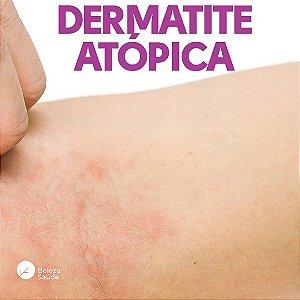 Composto Dermatite Atópica : Pool Lactobacillus 60 Cápsulas