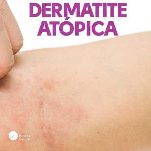 Composto Dermatite Atópica : Pool Lactobacillus 120 Cápsulas