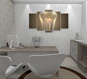 Quadro 5 Peças Dente Consultório Odontológico