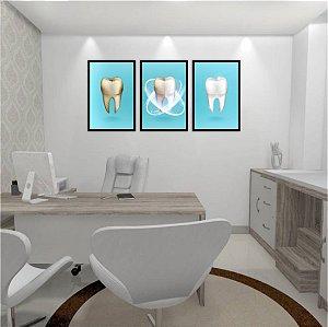 Kit 3 Quadros Odontológico Dente Canal Consultório Limpeza Dentista