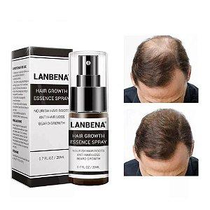 Óleo Spray Tratamento Massagem Calvície Anti Queda Alopecia Crescimento Cuidado Com os Cabelos 20 Ml