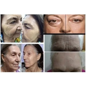 Serum Completo Vitamina C + Ácido Hialurônico Botox 15ml Lanbena