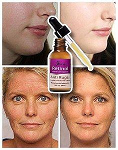 Anti Rugas Serum Hidratante Facial Retinol 30ml Skin Health