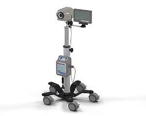Vídeocolposcópio (Acompanha Monitor 7'')