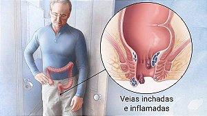 Hemorróidas