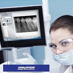 Sensor para radiografia digital T1 Dabi Atlante - Show Room Fora da Caixa