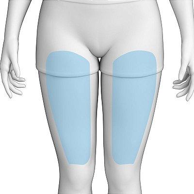 Depilação a Laser Anterior Da Coxa Feminino - Pacote Completo