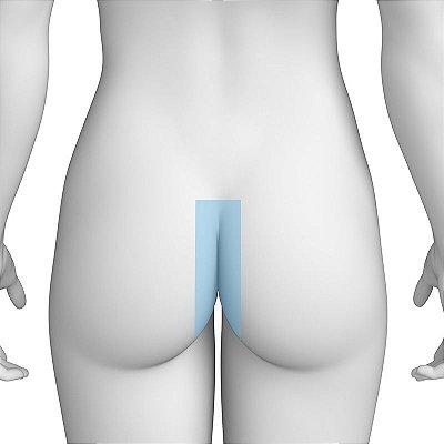 Depilação a Laser Glúteos Médios Feminino - Pacote Completo