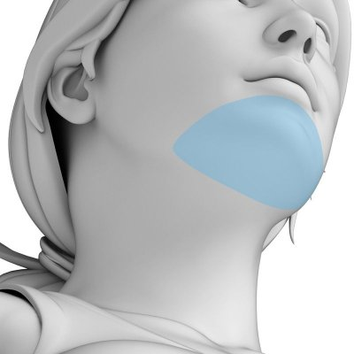 Depilação a Laser Queixo Feminino - Pacote Completo