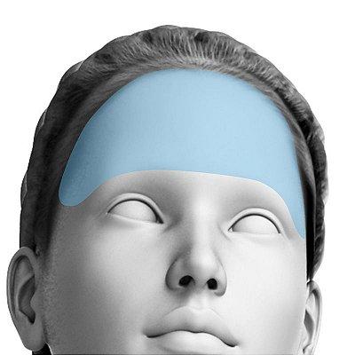 Depilação a Laser Testa Feminino - Pacote Completo