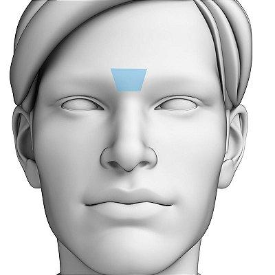 Depilação a Laser Glabela Masculino - Pacote Completo