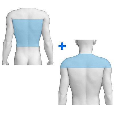 Combo Costas + Ombros - Pacote Completo Depilação a Laser
