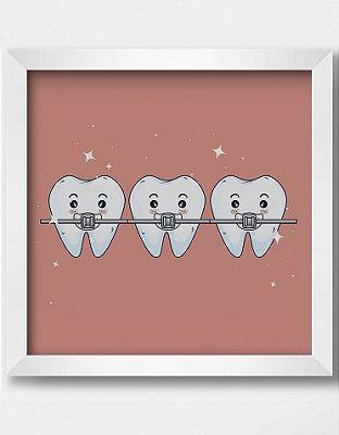 Quadro Decorativo Ortodôntico Ilustrativo Tratamento Ortodontista