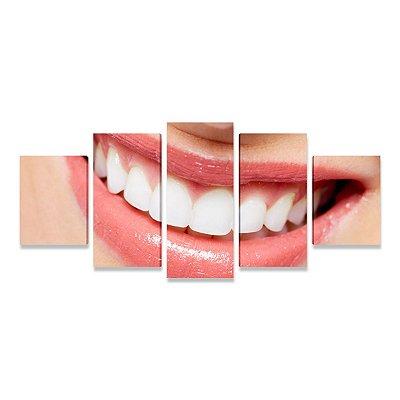 Quadro Consultório Odontológico Dentista Sorriso 01 - Mosaico 5 peças