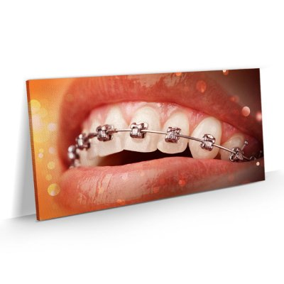 Quadro Consultório Odontológico Dentista Ortodontia Aparelho