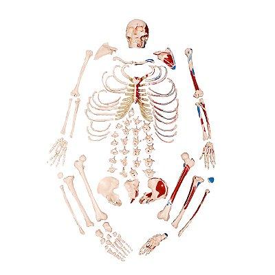 Esqueleto Tamanho Natural, Desarticulado, com Origem e Inserção Muscular TGD-0101-M