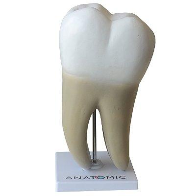 Dente Molar Ampliado Saudável e com Cárie TGD-0311-B