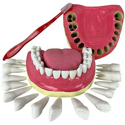 Dentição com Todos os Dentes Removíveis TGD-0312-C