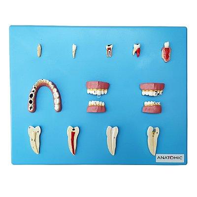 Patologia Dentária com 12 Peças TZJ-0311-P