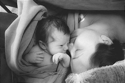 Maternidade - Cesária agendada