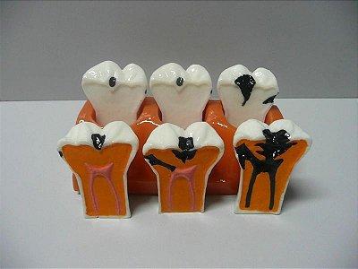 Macro Evolução da Cárie (3 Dentes)