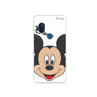 Capa para Moto One Hyper - Mickey
