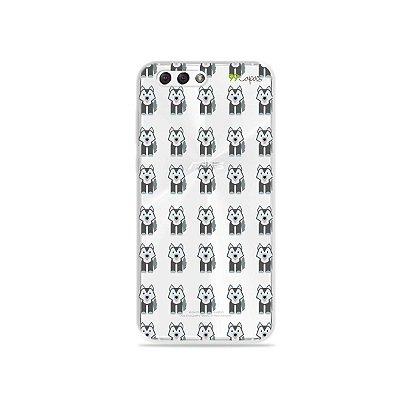 Capa para Zenfone 4 - Husky