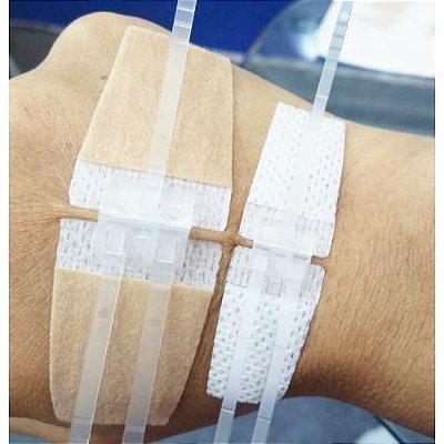 Curativo de Ponto Falso - Sutura não invasiva c/ 4 unidades