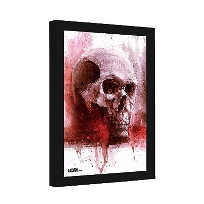 Quadro Decorativo Bleeding Skull