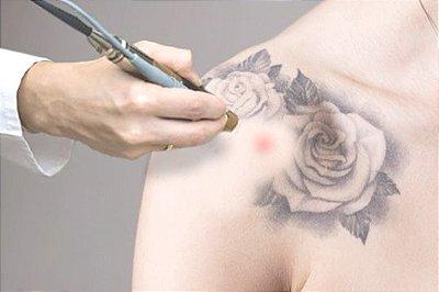 Workshop remoção a laser de Tatuagens