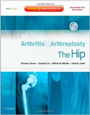 ARTHRITIS AND ARTHROPLASTY: THE HIP - EXPERT CONSULT - ONLINE, PRINT AND DV