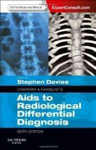 CHAPMAN E NAKIELNYS AIDS TO RADIOLOGICAL DIFFERENTIAL DIAGNOSIS, EXPERT CON
