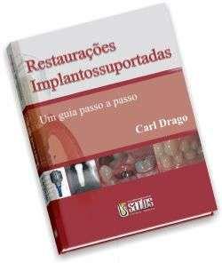 RESTAURACOES IMPLANTOSSUPORTADAS - UM GUIA PASSO A PASSO
