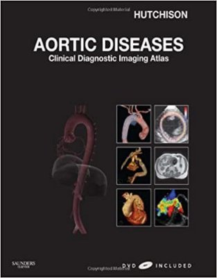 AORTIC DISEASES - CLINICAL DIAGNOSTIC IMAGING ATLAS