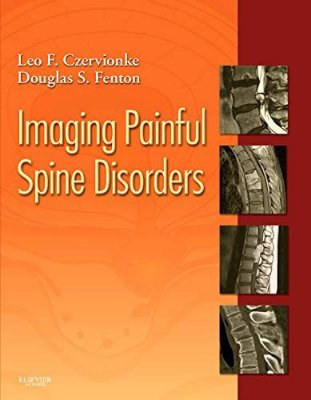 IMAGING PAINFUL SPINE DISORDERS - EXPERT CONSULT- ONLINE AND PRINT