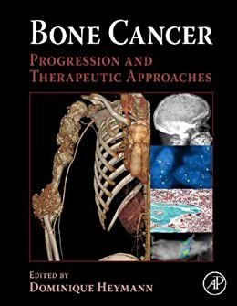 BONE CANCER - PROGRESSION AND THERAPEUTIC APPROACHES
