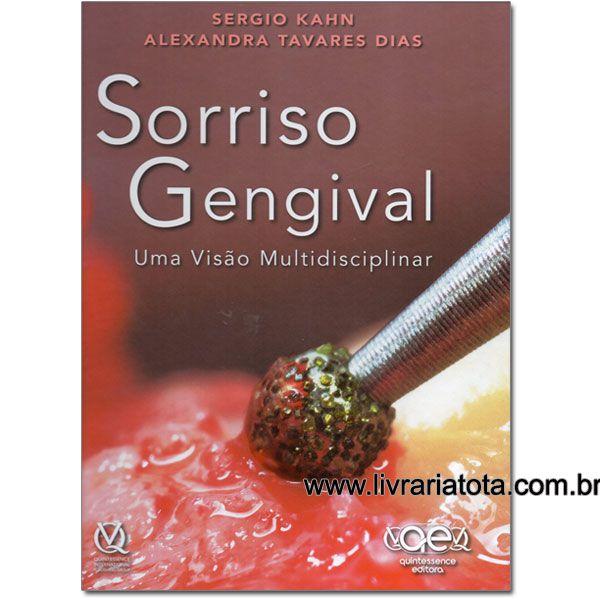 Sorriso Gengival - Uma Visão Multidisciplinar - Sergio Kahn; Alexandra Tavares Dias