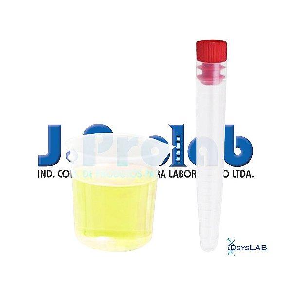 Kit Estéril para Coleta de Urina com Tubo Cônico 12 mL, com Tampa e Copo de Becker, pacote c/ 50 unidades, mod.: 9363-0-PCT (J.Prolab)