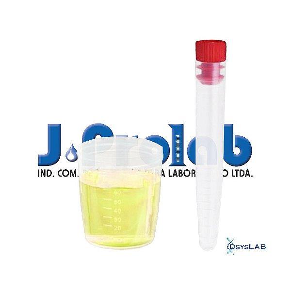 Kit para Coleta de Urina com Tubo de 12 mL, Estéril, com Tampa Vermelha e Base do Coletor de 80 mL, pacote c/50 unidades, mod.: 9363-8-PCT (J.Prolab)