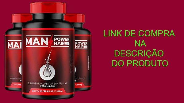 Man Power Hair-DIGA ADEUS À CALVÍCIE!