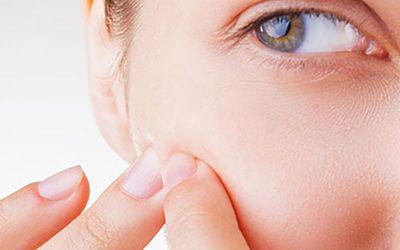 Tratamento para Acne - 55 Minutos