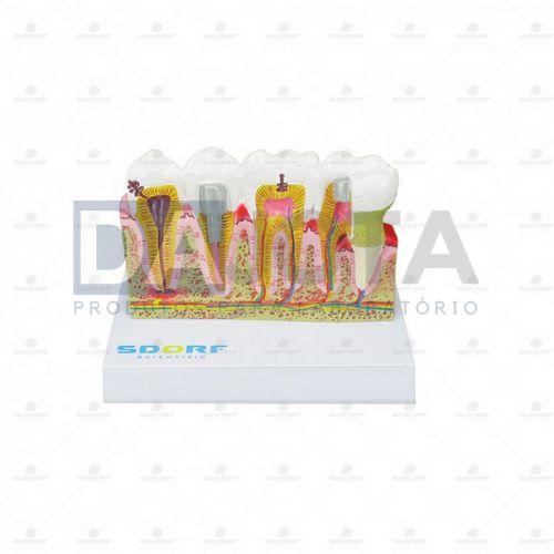Modelo de Patologias Dentárias