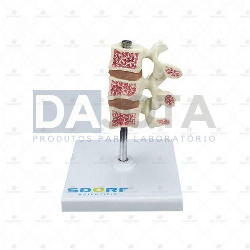 Modelo De Osteoporose