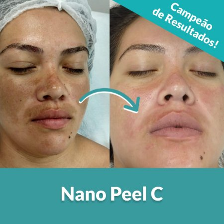 Nano Peel C