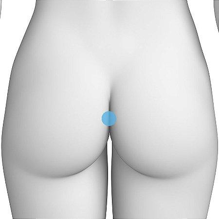 Depilação a Laser Perianal Feminino - Pacote Completo