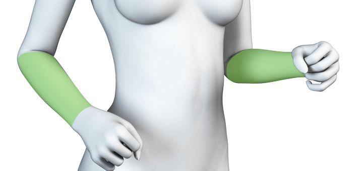 Depilação a Laser Antebraços Feminino - Pacote Completo