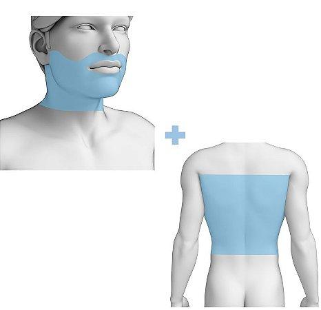 Combo Barba + Costas Masculino - Depilação a Laser