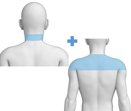 Combo Nuca + Ombros - Pacote Completo Depilação a Laser